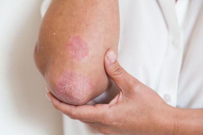 Псориаз и беременность: лечение, возможные последствия