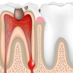 Больно ли удалять нерв из зуба? Зачем зубу нужен нерв? Как удаляют нерв из зуба