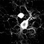 Отростки нейронов: определение, строение, виды и функции