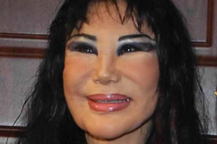 До ужаса красивы:15 шокирующих пластических операций, завершившихся плачевно