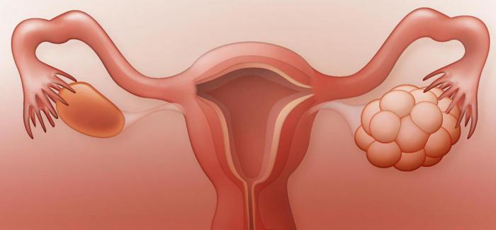 9 неожиданных причин задержки менструального цикла