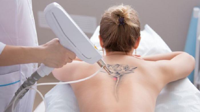 Хотите сделать себе татуировку? 12 серьезных причин передумать