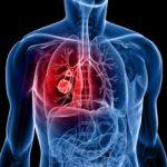 Рак легкого: клиника и клиническая группа, диагностика, симптомы, причины и лечение