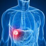 Химиоэмболизация печени: показания, подготовка к процедуре, алгоритм проведения и восстановление