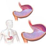 Гастрорефлюксная болезнь: симптомы, причины, лечение, диета, советы гастроэнтерологов