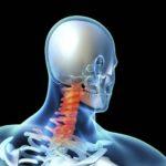 Шейная грыжа: симптомы и лечение