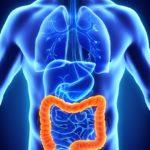 Опухоль толстой кишки: симптомы, диагностика, классификация, лечение и восстановление