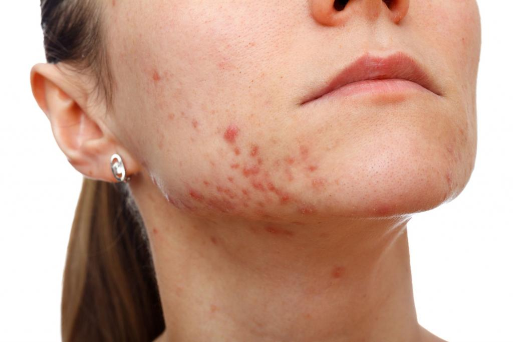 Pussy facial scarring from acne