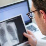 Петрификаты в легких: описание, причины появления, лечение