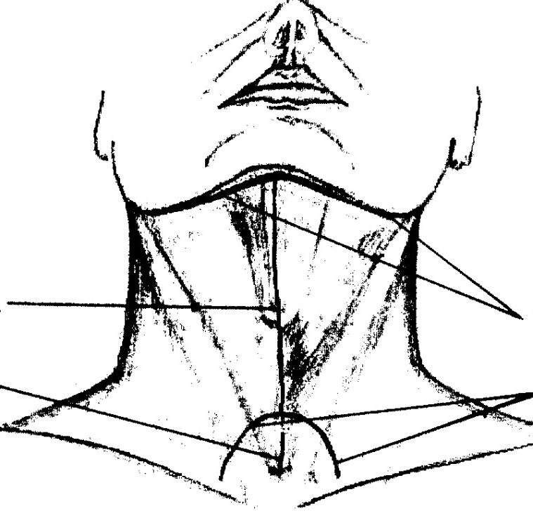 операция флегмоны