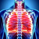 Острый бронхит - это... Описание заболевания, симптомы, лечение, профилактика