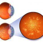 Лазерная коагуляция сетчатки глаза, послеоперационный период: рекомендации офтальмолога