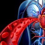 Ревматический эндокардит: симптомы, возможные осложнения, лечение