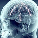 Изменение личности при эпилепсии и особенности поведения. Изменение характера при эпилепсии