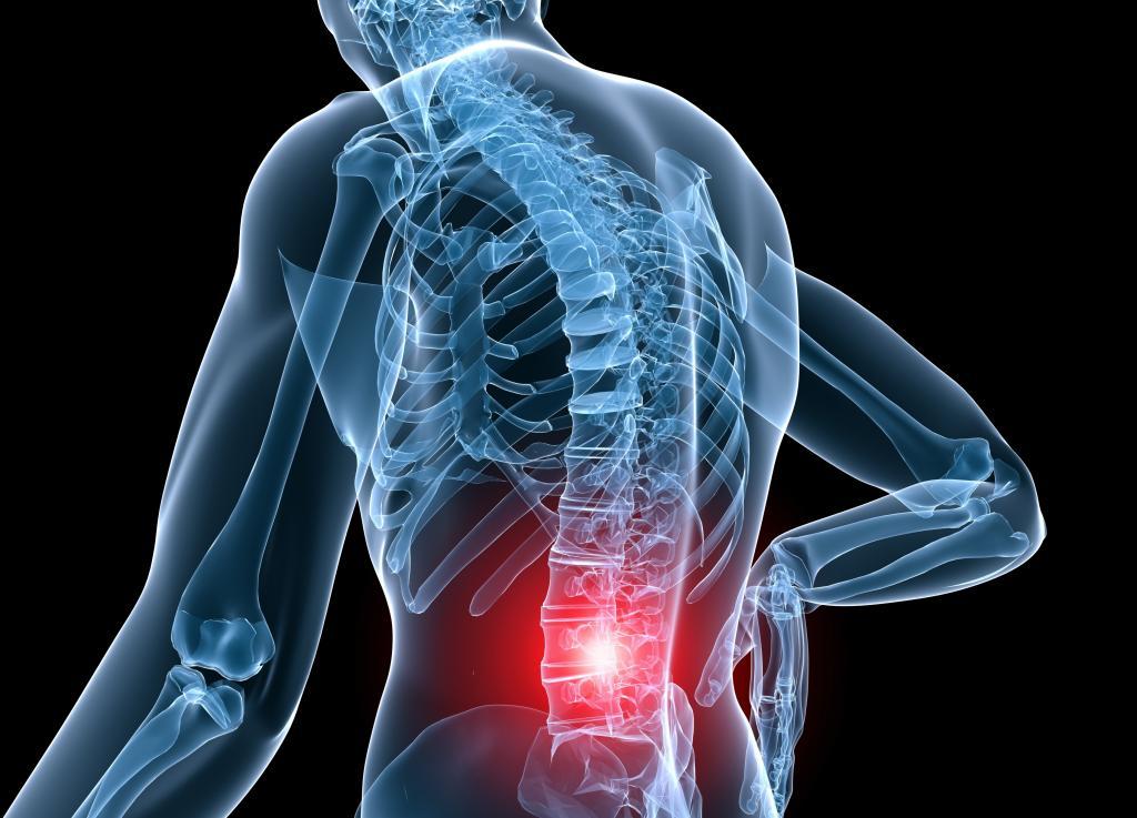 Боли в спине слева в ребрах
