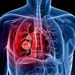 Формы и классификация рака легкого