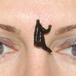 Гирудотерапия в косметологии: точки постановки