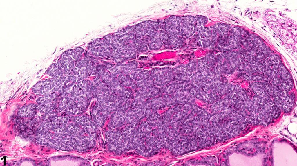 гиперплазия паращитовидных желез