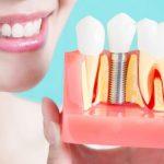 Какой имплант лучше ставить: типы имплантов, описание, рекомендации стоматологов