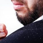 Хороший шампунь от перхоти для мужчин: обзор
