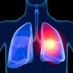Что такое саркоидоз легких? Саркоидоз легких: код по МКБ 10, симптомы, патогенез, диагностика, метод...