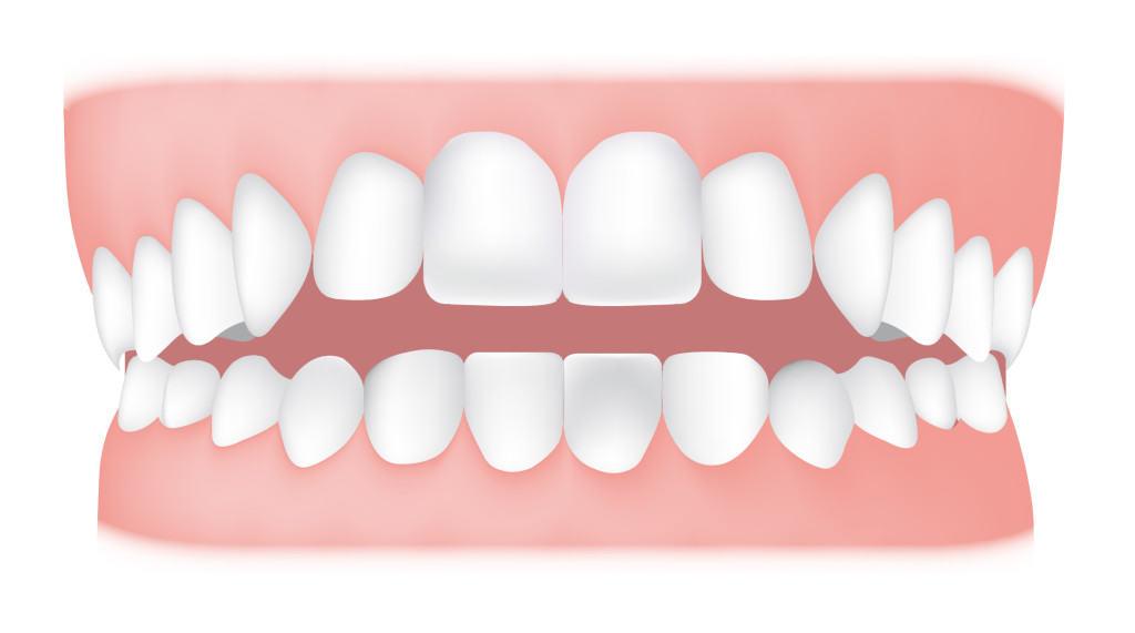 Следы зубов