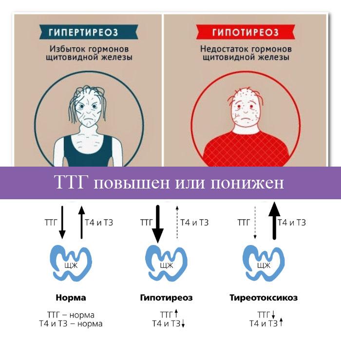 норма гормонов щитовидной железы в менопаузе