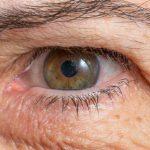 Миопатия глаз - что это такое? Характеристика, симптомы и лечение миопии глаз