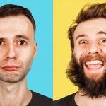 Пересадка волос на бороду: описание метода, техника выполнения, особенности, отзывы