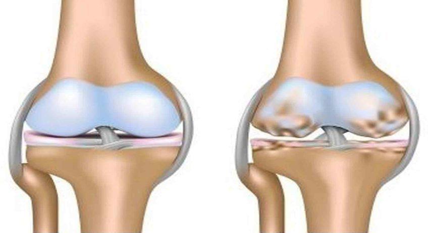 Кости колен