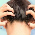 Зуд головы без перхоти: причины и способы лечения