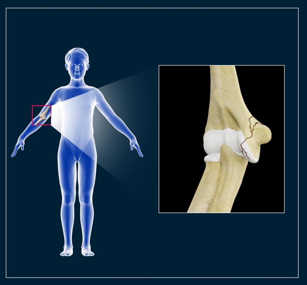 перелом лучевой кости ребенка