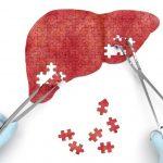 Диагностика вирусных гепатитов: список лабораторных анализов, особенности проведения и расшифровка р...