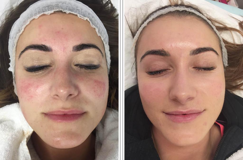 пилинг при куперозе лица