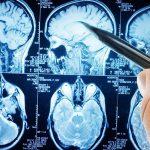 Склероз головного мозга: симптомы, лечение, профилактика