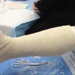 Переломы нижней конечности: виды, симптомы и методы лечения