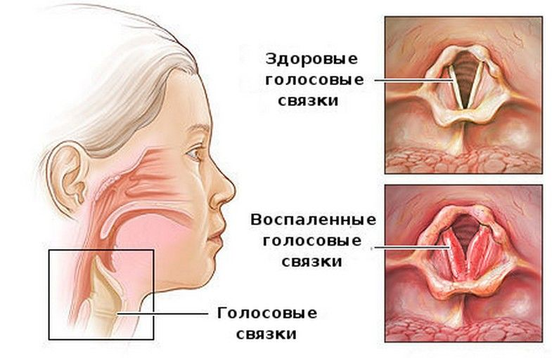 ларинготрахеит лечение у взрослых