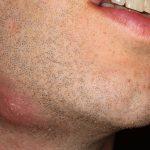 Абсцесс мягких тканей: первые признаки, описание с фото, лечение и профилактика
