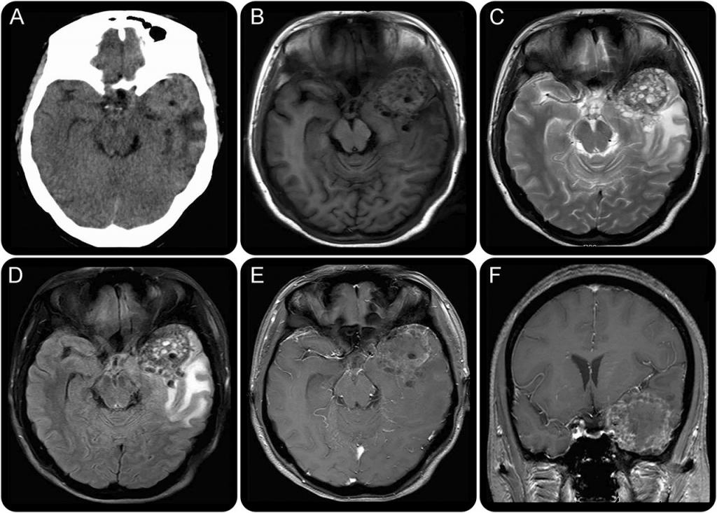 Глисты в мозгу человека симптомы