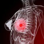 Опухоль грудной железы у женщин: симптомы, методы диагностики и лечения