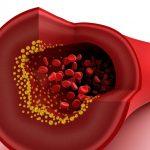 Как восстановить кровообращение: советы