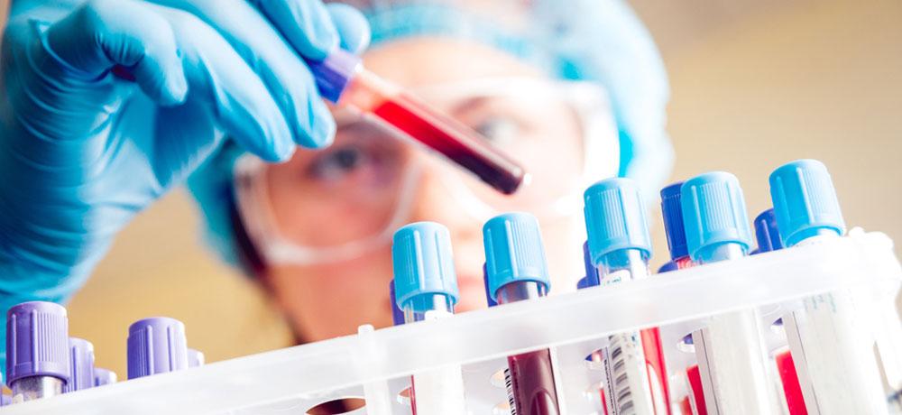 Низкий уровень лейкоцитов в крови у женщин