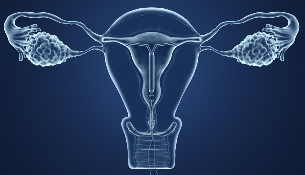 где можно удалить внутриматочную спираль врач женщина