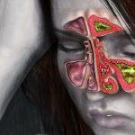 Воспаление слизистой оболочки носа: причины, симптомы и лечение
