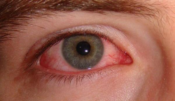 кровоснабжение глаза
